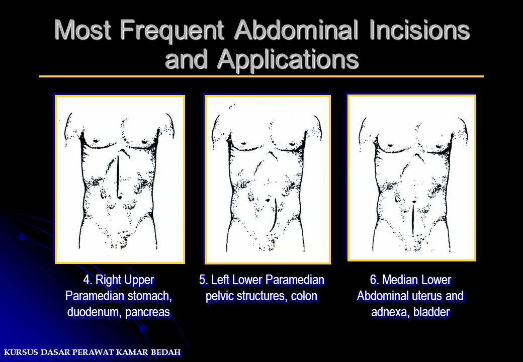Most Frequent Abdominal Incisions and Applications