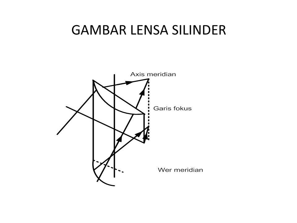 GAMBAR LENSA SILINDER
