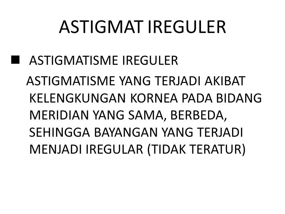 ASTIGMAT IREGULER ASTIGMATISME IREGULER