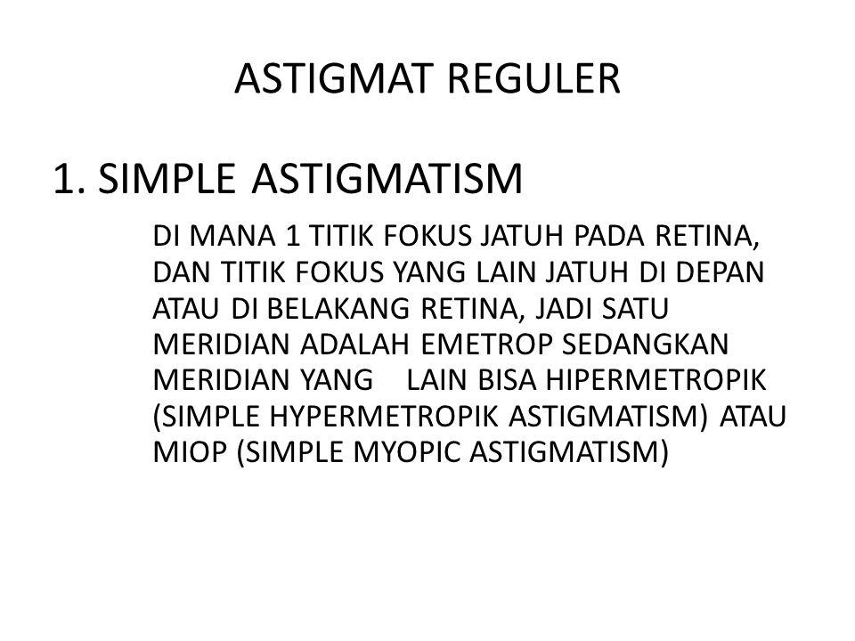 ASTIGMAT REGULER 1. SIMPLE ASTIGMATISM