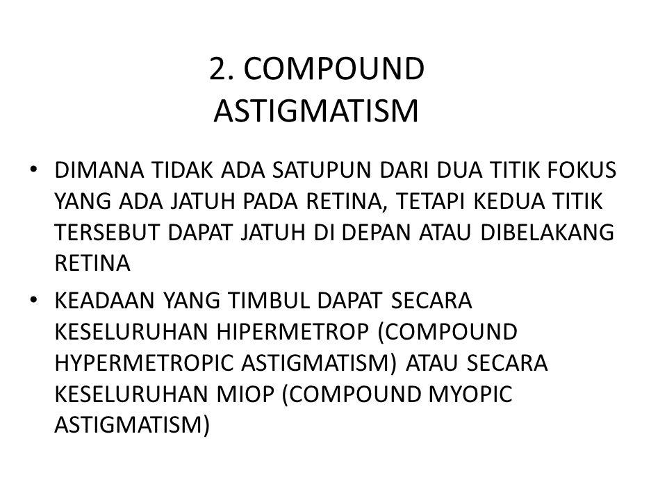 2. COMPOUND ASTIGMATISM