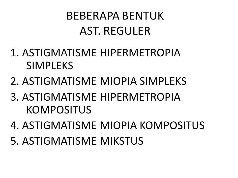 BEBERAPA BENTUK AST. REGULER