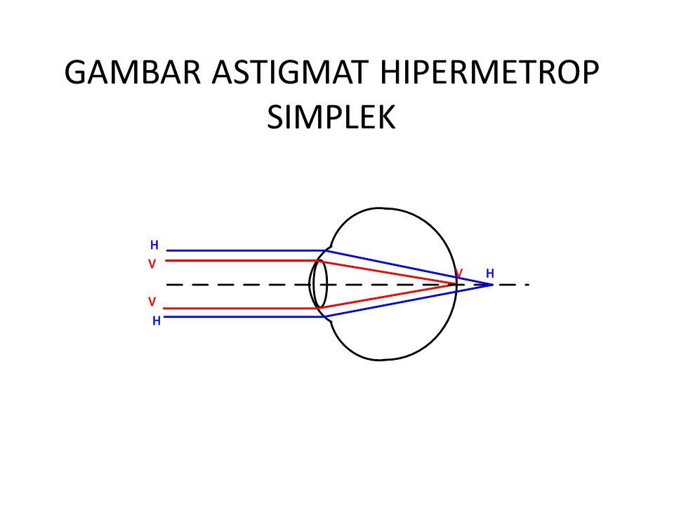 GAMBAR ASTIGMAT HIPERMETROP SIMPLEK