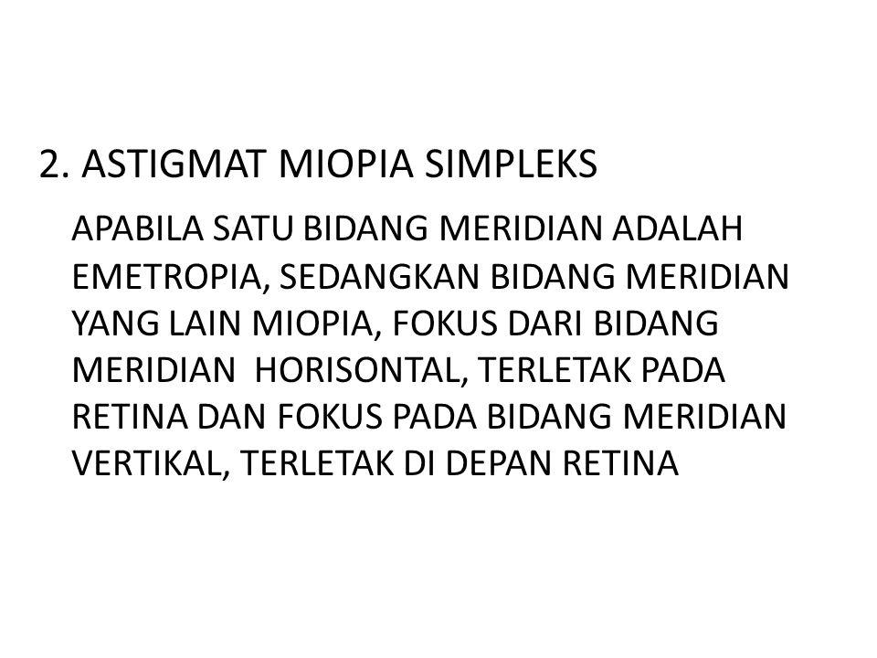 2. ASTIGMAT MIOPIA SIMPLEKS