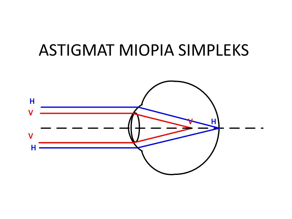 ASTIGMAT MIOPIA SIMPLEKS