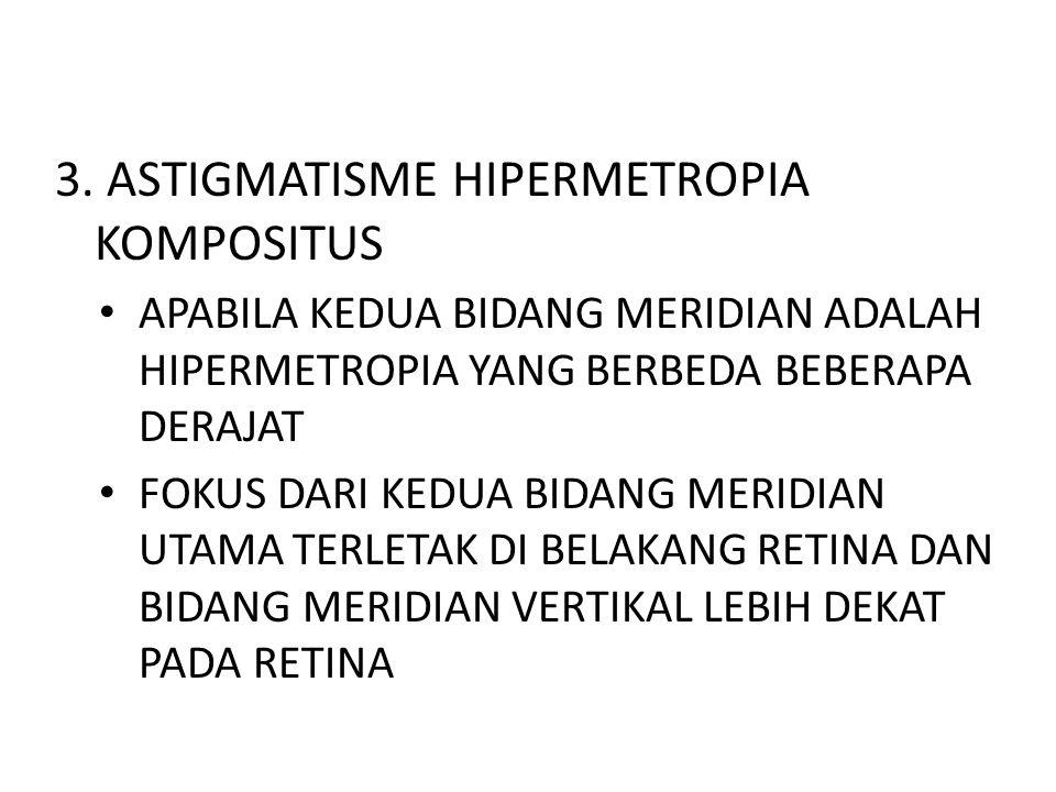 3. ASTIGMATISME HIPERMETROPIA KOMPOSITUS