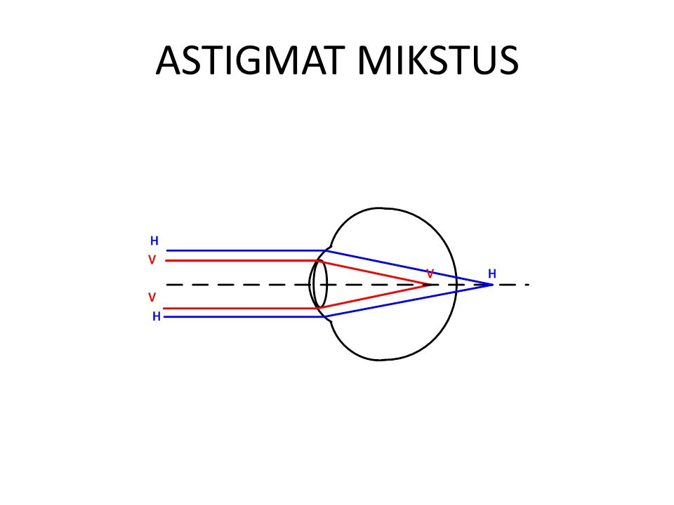 ASTIGMAT MIKSTUS