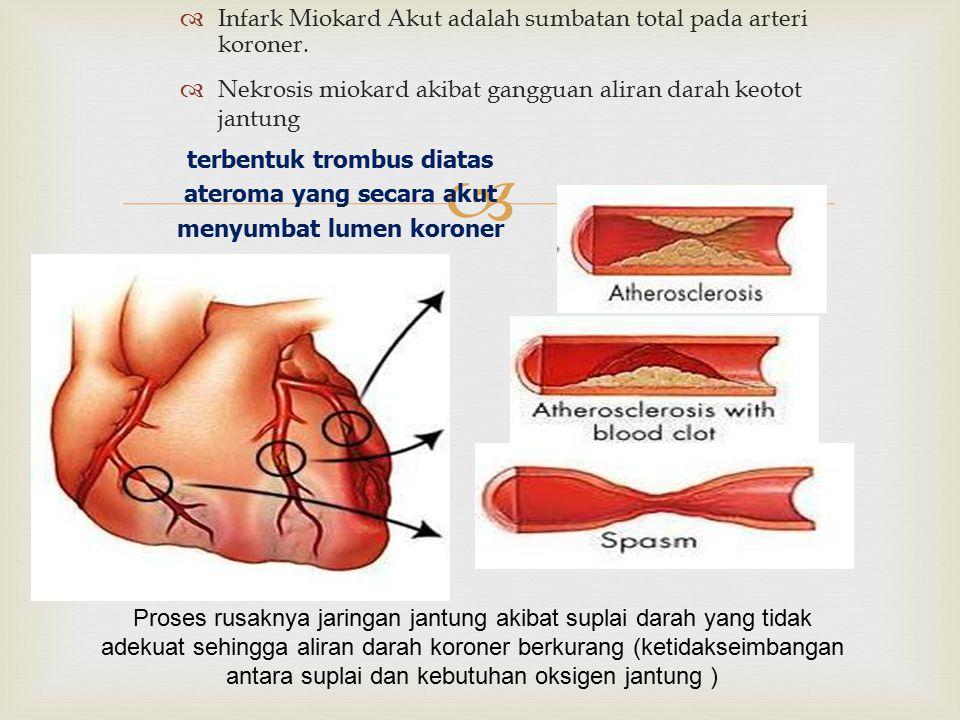 Infark Miokard Akut adalah sumbatan total pada arteri koroner.