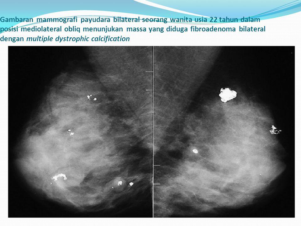 Gambaran mammografi payudara bilateral seorang wanita usia 22 tahun dalam posisi mediolateral obliq menunjukan massa yang diduga fibroadenoma bilateral dengan multiple dystrophic calcification