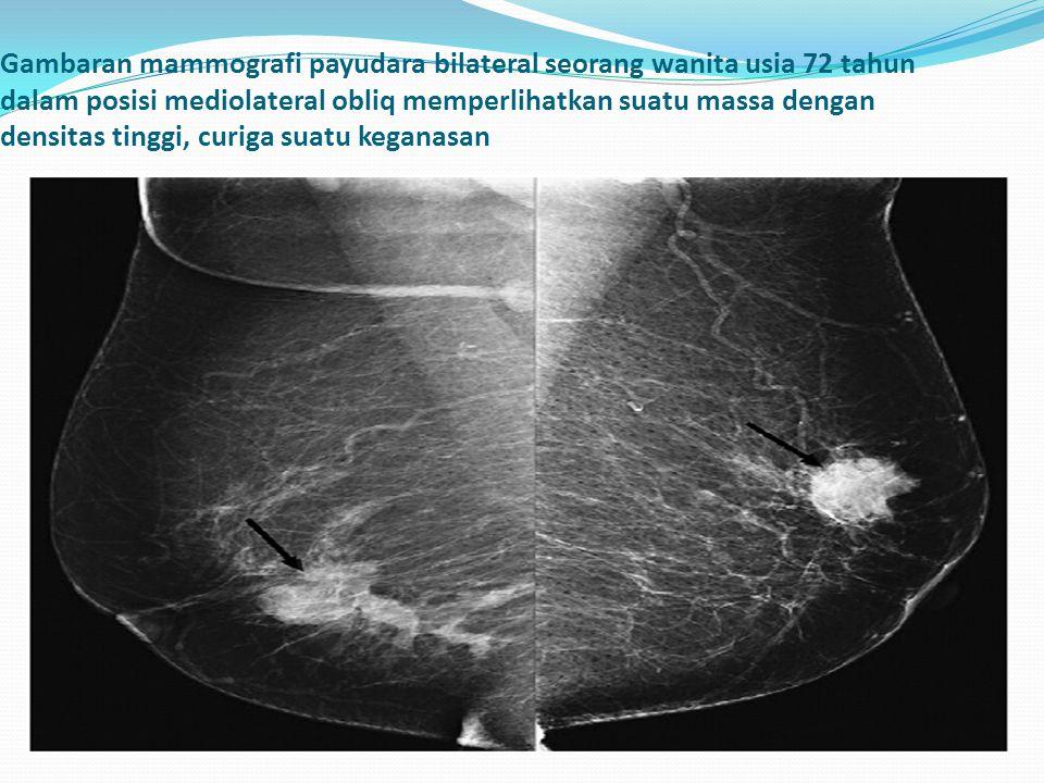 Gambaran mammografi payudara bilateral seorang wanita usia 72 tahun dalam posisi mediolateral obliq memperlihatkan suatu massa dengan densitas tinggi, curiga suatu keganasan