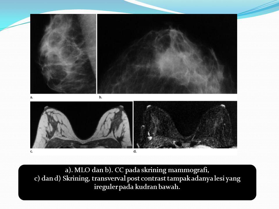 a). MLO dan b). CC pada skrining mammografi,