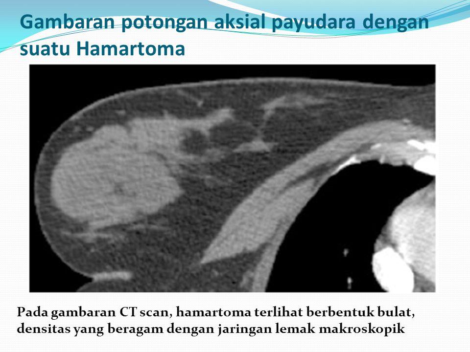 Gambaran potongan aksial payudara dengan suatu Hamartoma