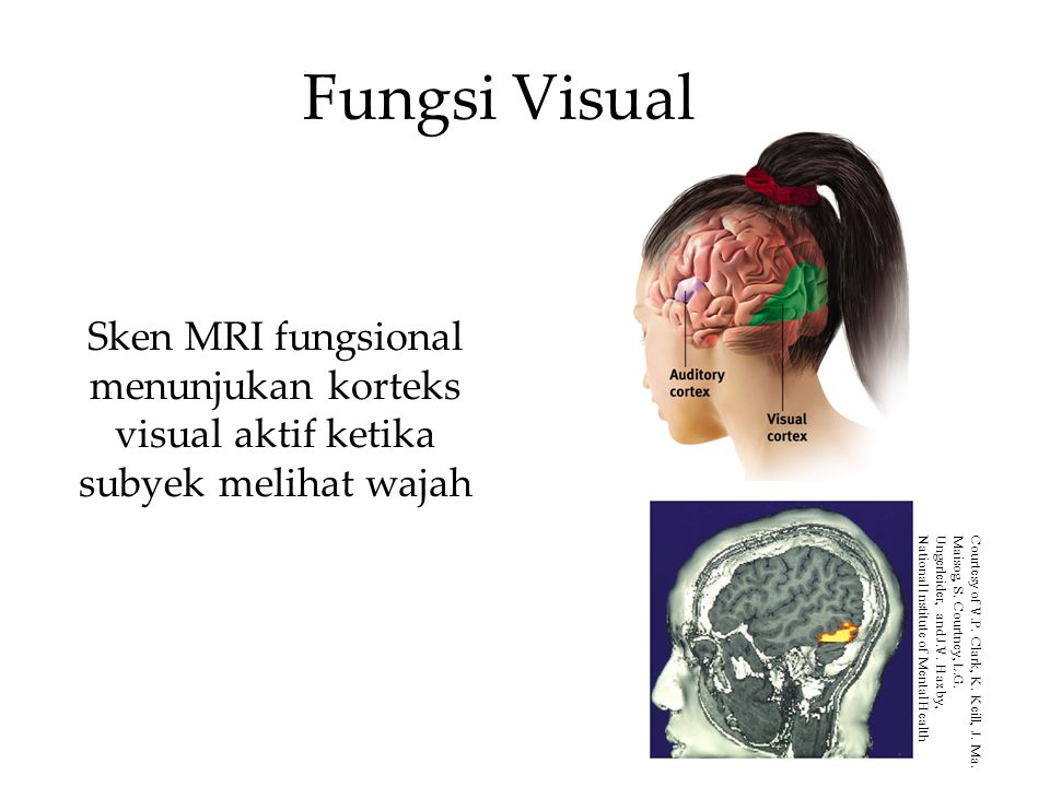Fungsi Visual Sken MRI fungsional menunjukan korteks visual aktif ketika subyek melihat wajah.