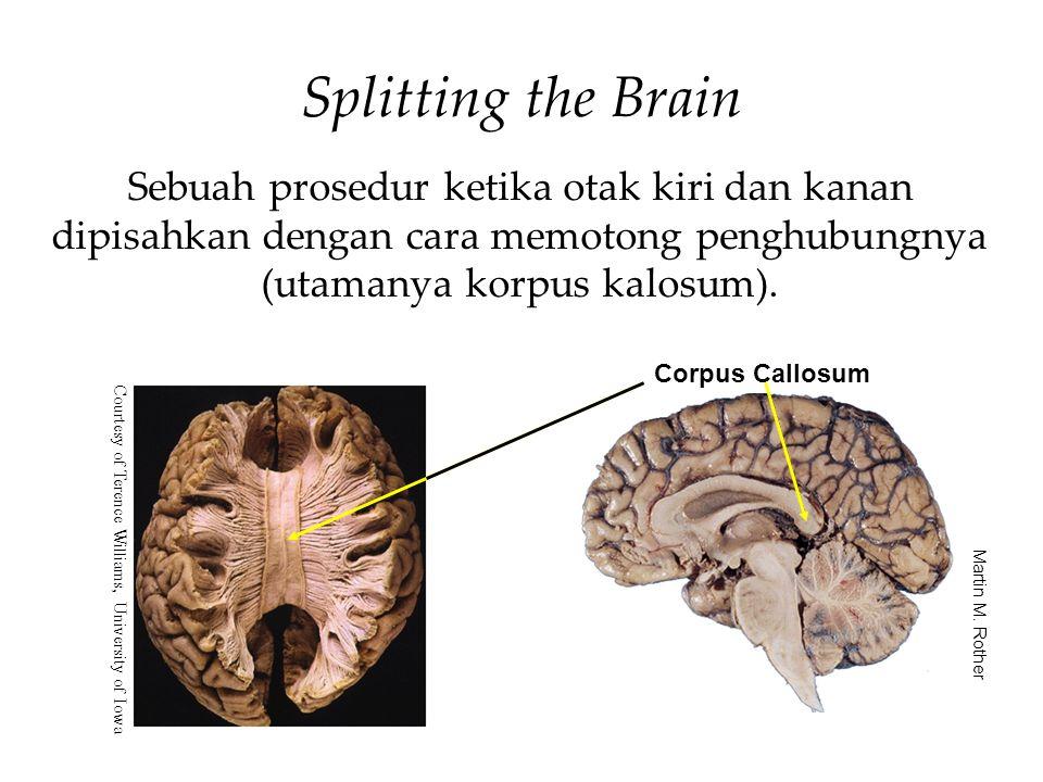 Splitting the Brain Sebuah prosedur ketika otak kiri dan kanan dipisahkan dengan cara memotong penghubungnya (utamanya korpus kalosum).