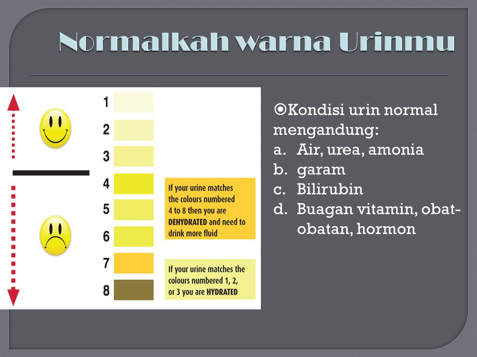 Normalkah warna Urinmu