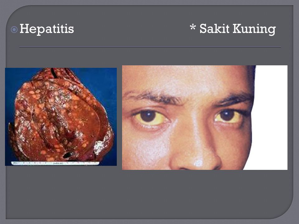 Hepatitis * Sakit Kuning