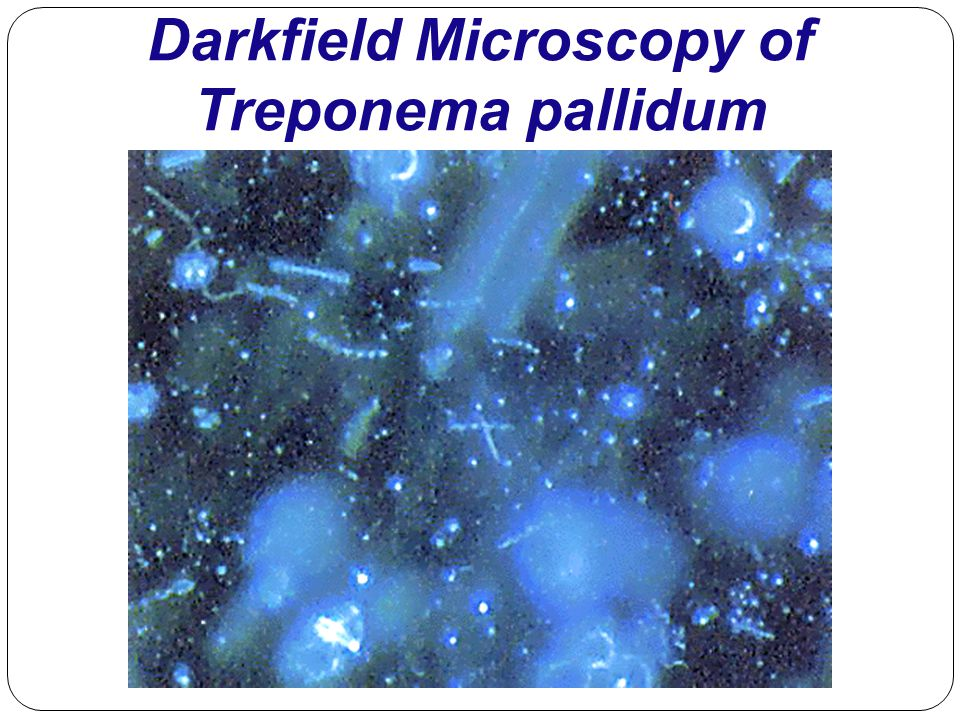 Darkfield Microscopy of Treponema pallidum
