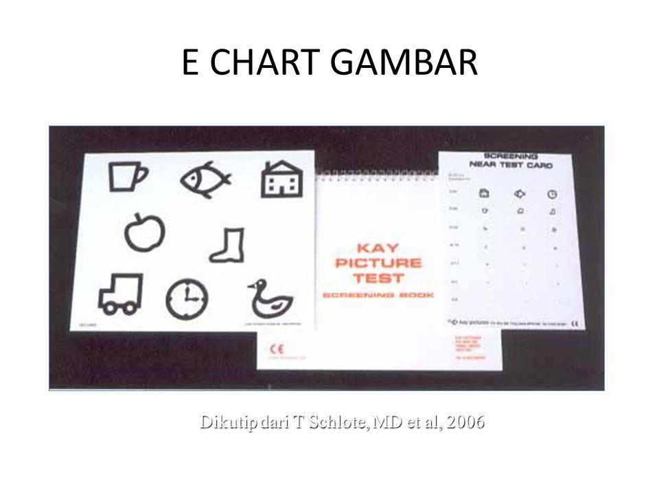 E CHART GAMBAR Dikutip dari T Schlote, MD et al, 2006