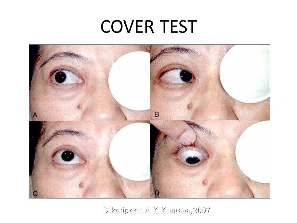 COVER TEST Dikutip dari A K Khurana, 2007