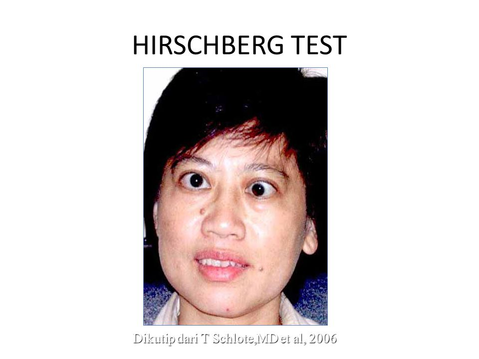 HIRSCHBERG TEST Dikutip dari T Schlote,MD et al, 2006