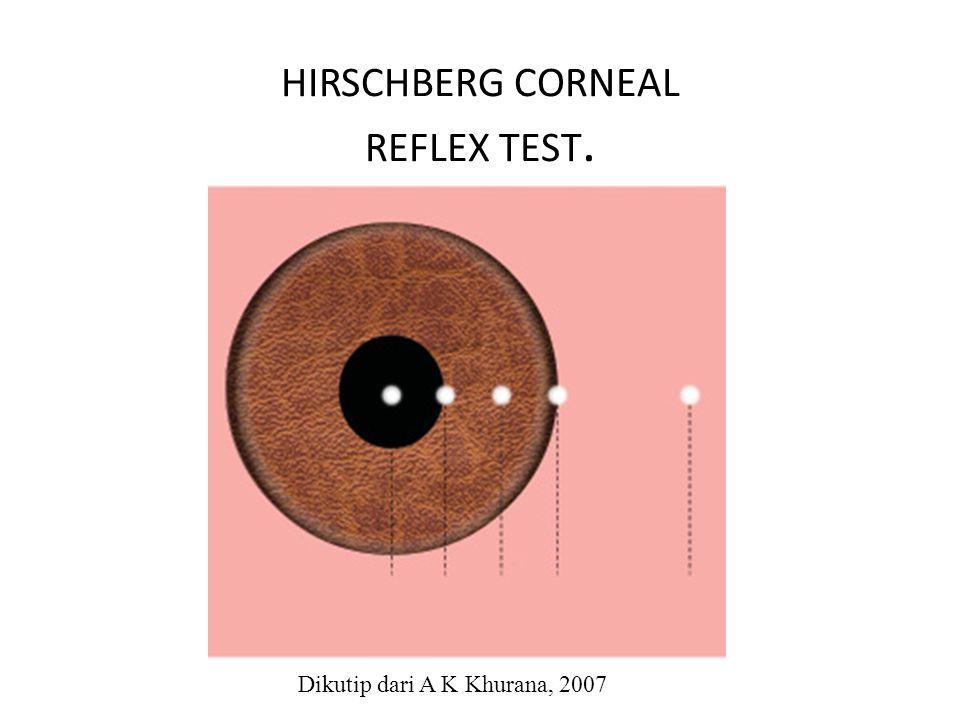 HIRSCHBERG CORNEAL REFLEX TEST.