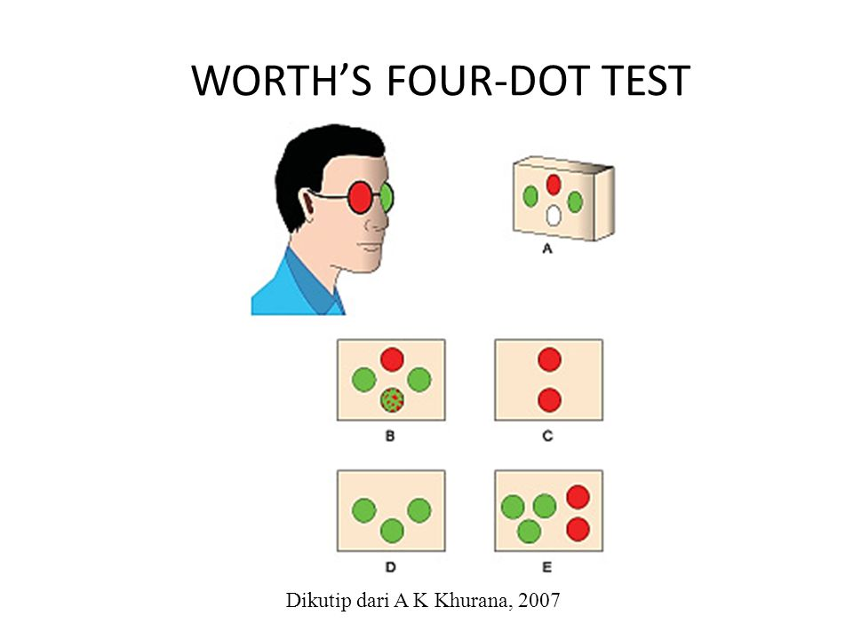 WORTH'S FOUR-DOT TEST Dikutip dari A K Khurana, 2007