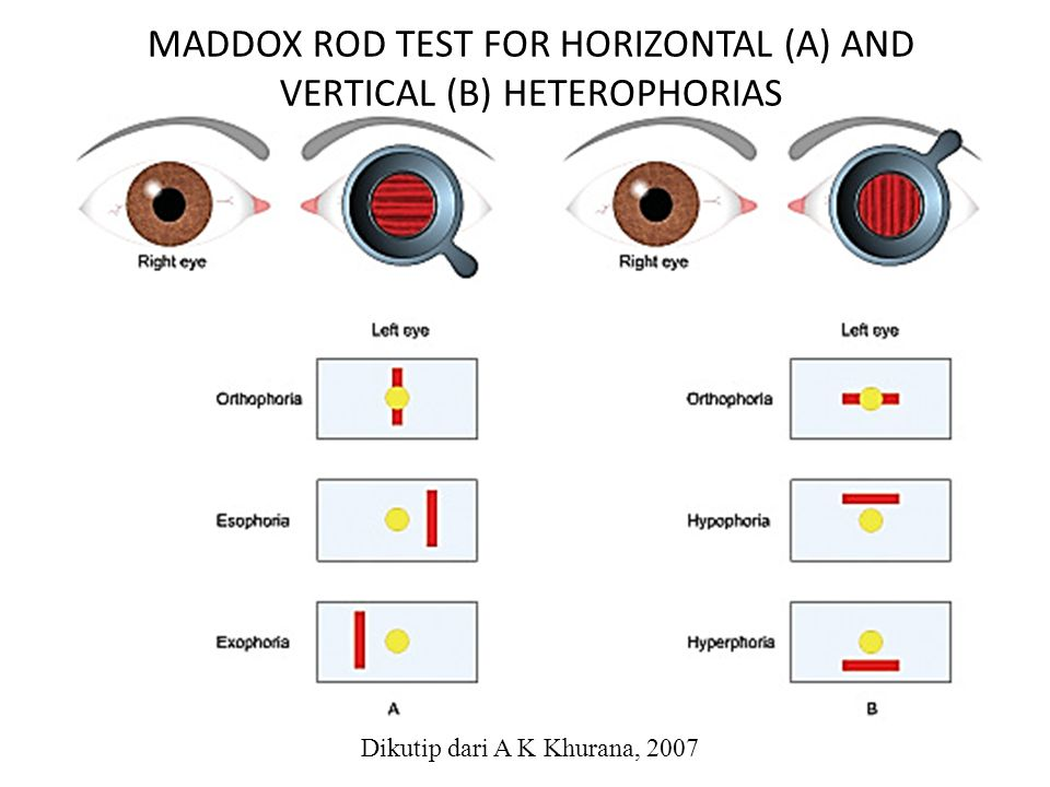 MADDOX ROD TEST FOR HORIZONTAL (A) AND VERTICAL (B) HETEROPHORIAS
