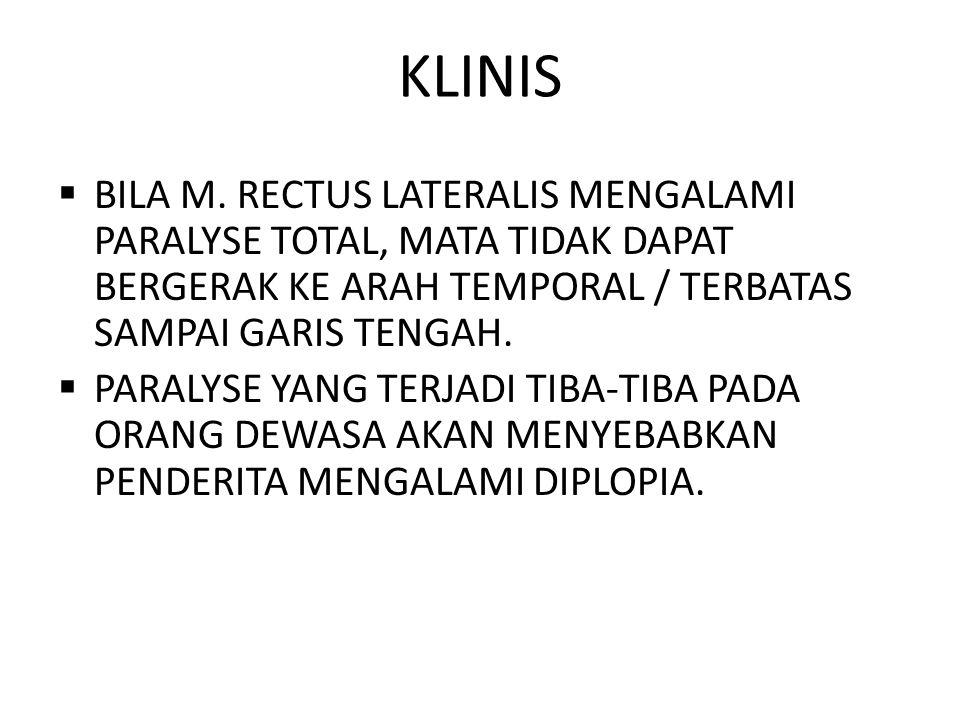 KLINIS BILA M. RECTUS LATERALIS MENGALAMI PARALYSE TOTAL, MATA TIDAK DAPAT BERGERAK KE ARAH TEMPORAL / TERBATAS SAMPAI GARIS TENGAH.