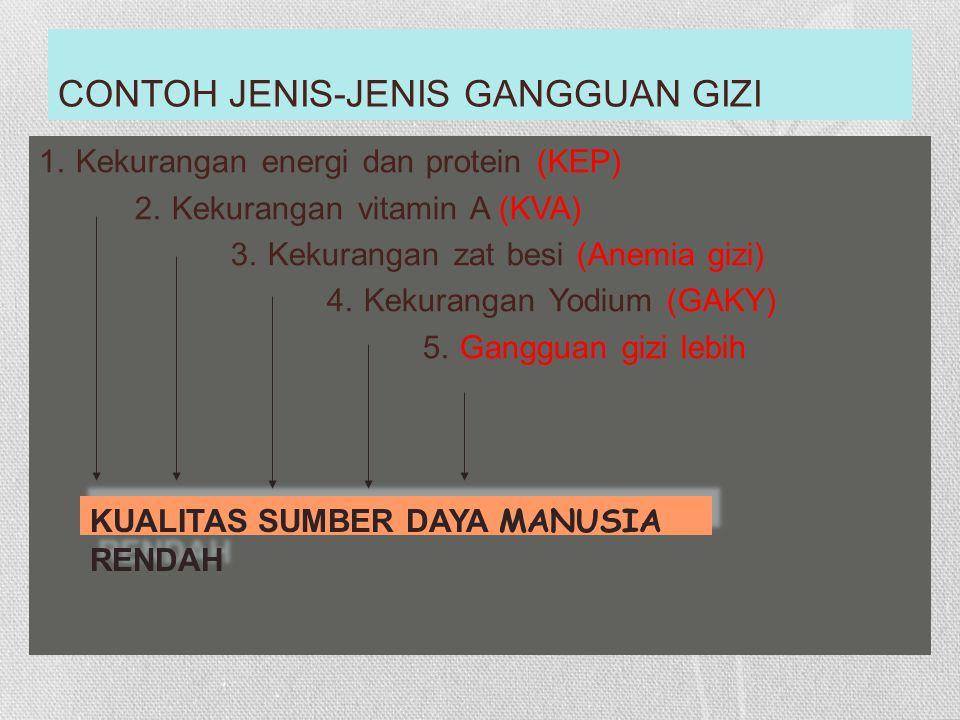 CONTOH JENIS-JENIS GANGGUAN GIZI