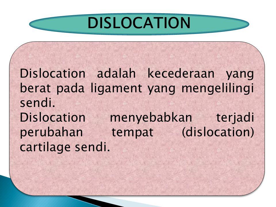 DISLOCATION Dislocation adalah kecederaan yang berat pada ligament yang mengelilingi sendi.
