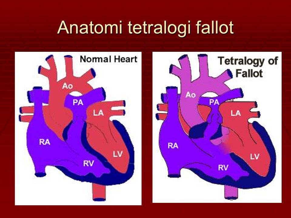 Anatomi tetralogi fallot