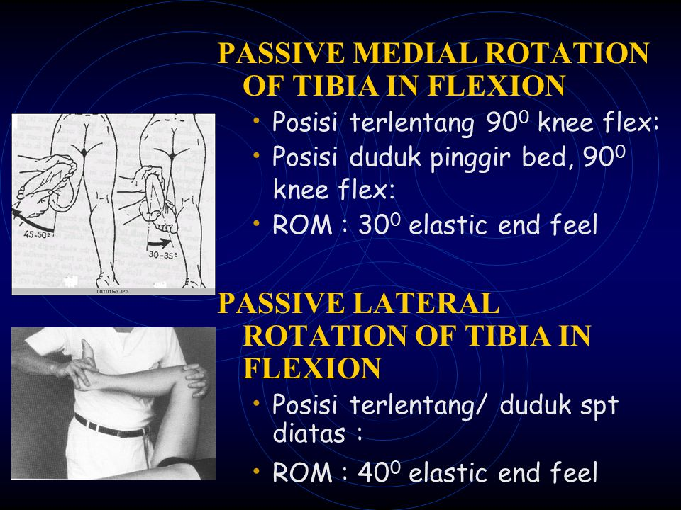 PASSIVE MEDIAL ROTATION OF TIBIA IN FLEXION