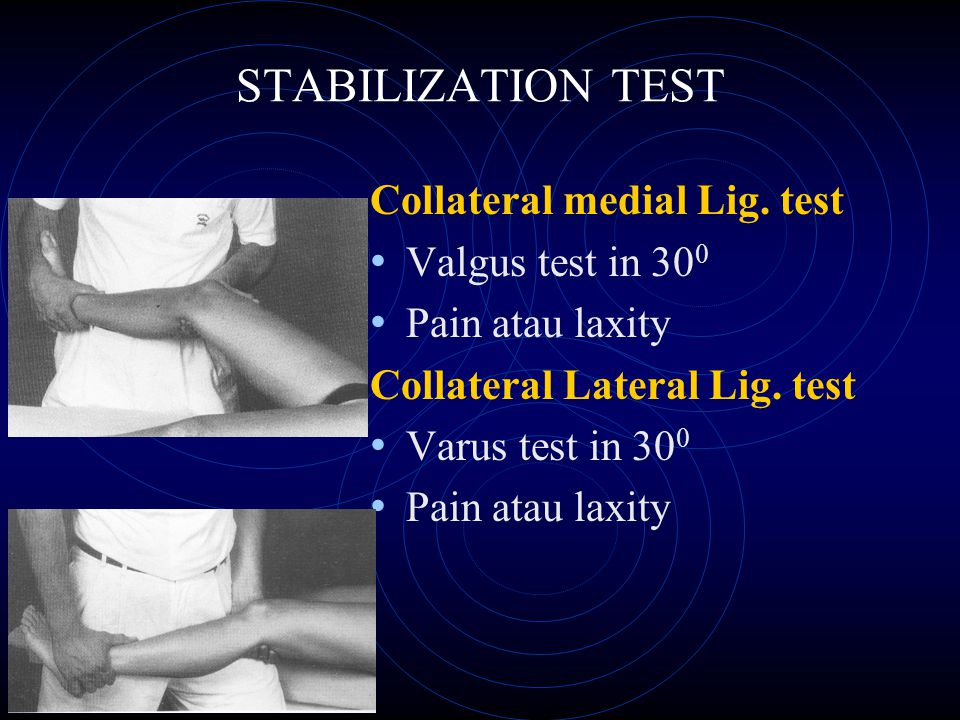 STABILIZATION TEST Collateral medial Lig. test Valgus test in 300