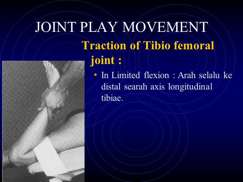 JOINT PLAY MOVEMENT Traction of Tibio femoral joint :