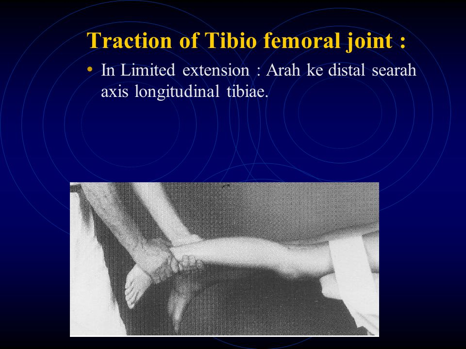 Traction of Tibio femoral joint :