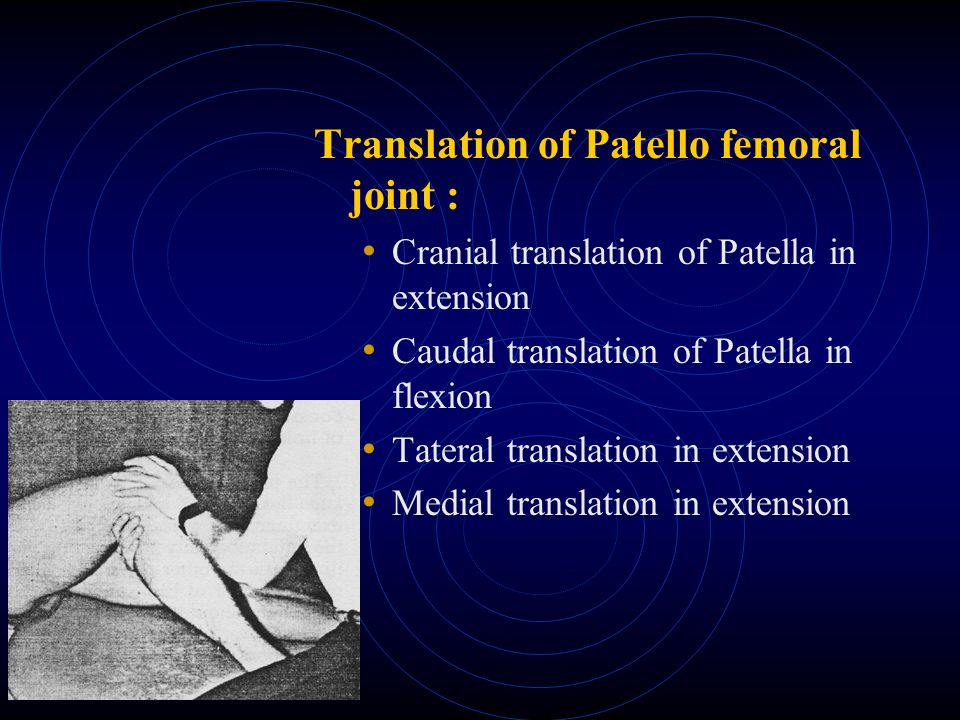 Translation of Patello femoral joint :