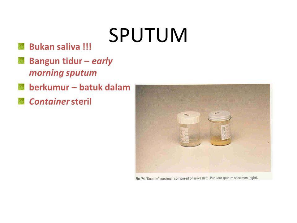 SPUTUM Bukan saliva !!! Bangun tidur – early morning sputum