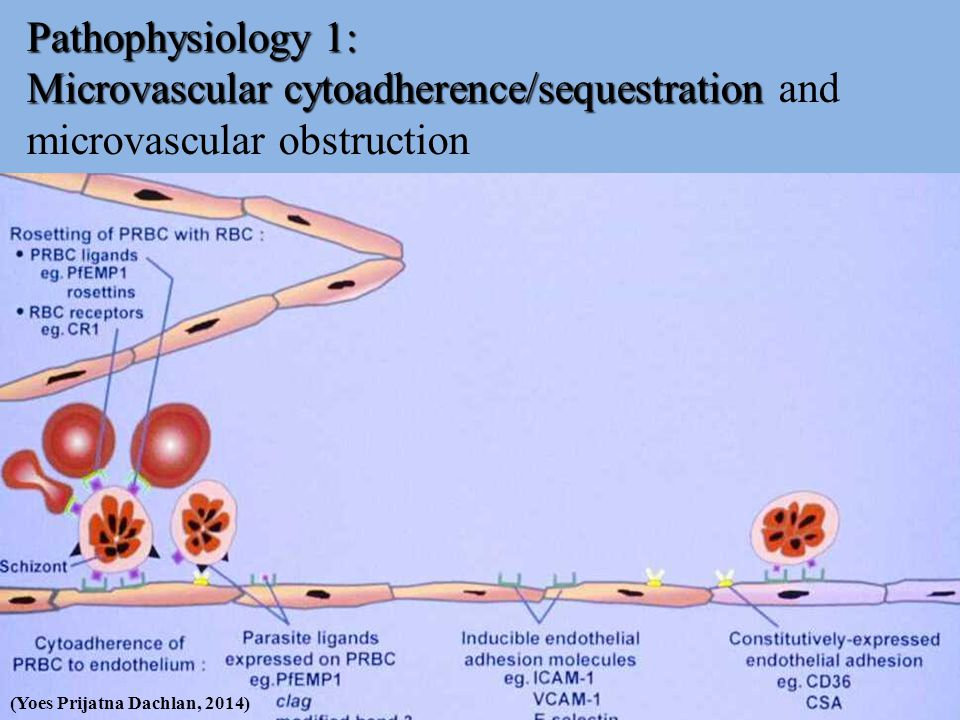 Pathophysiology 1: Microvascular cytoadherence/sequestration and microvascular obstruction