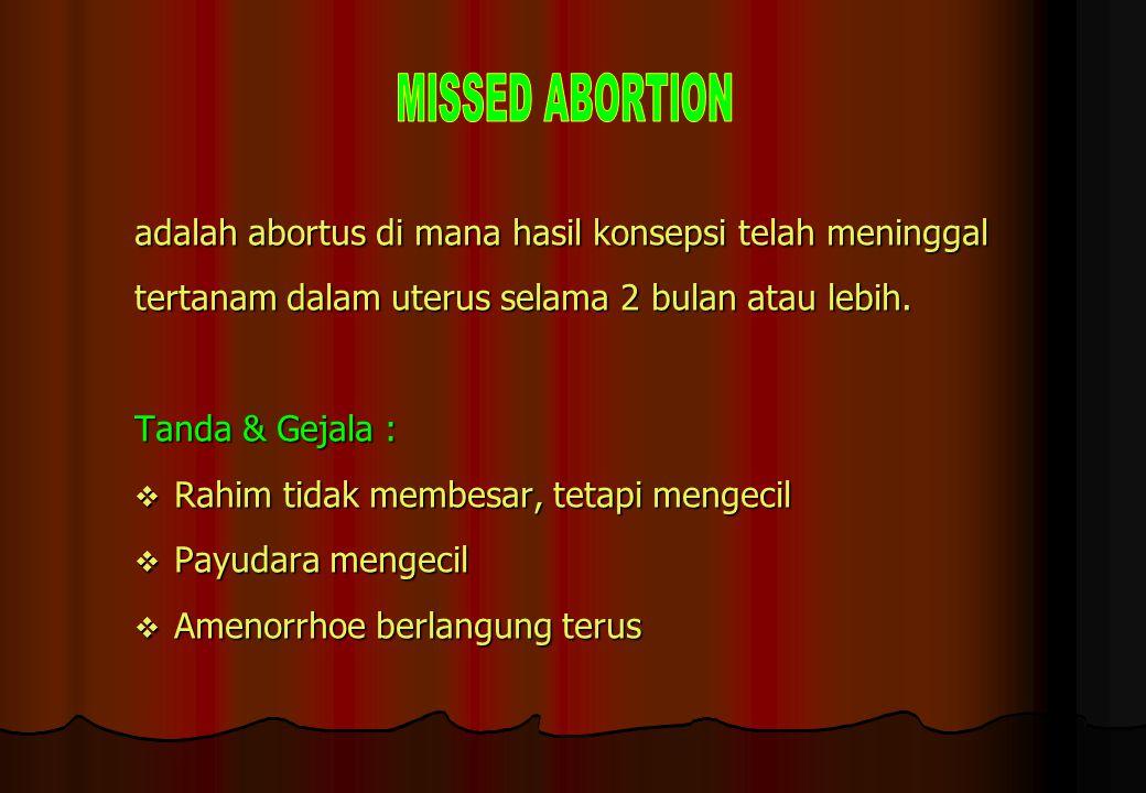 MISSED ABORTION adalah abortus di mana hasil konsepsi telah meninggal