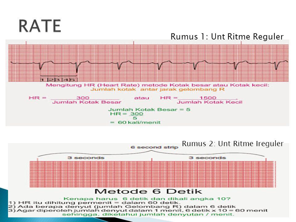 RATE Rumus 1: Unt Ritme Reguler Rumus 2: Unt Ritme Ireguler