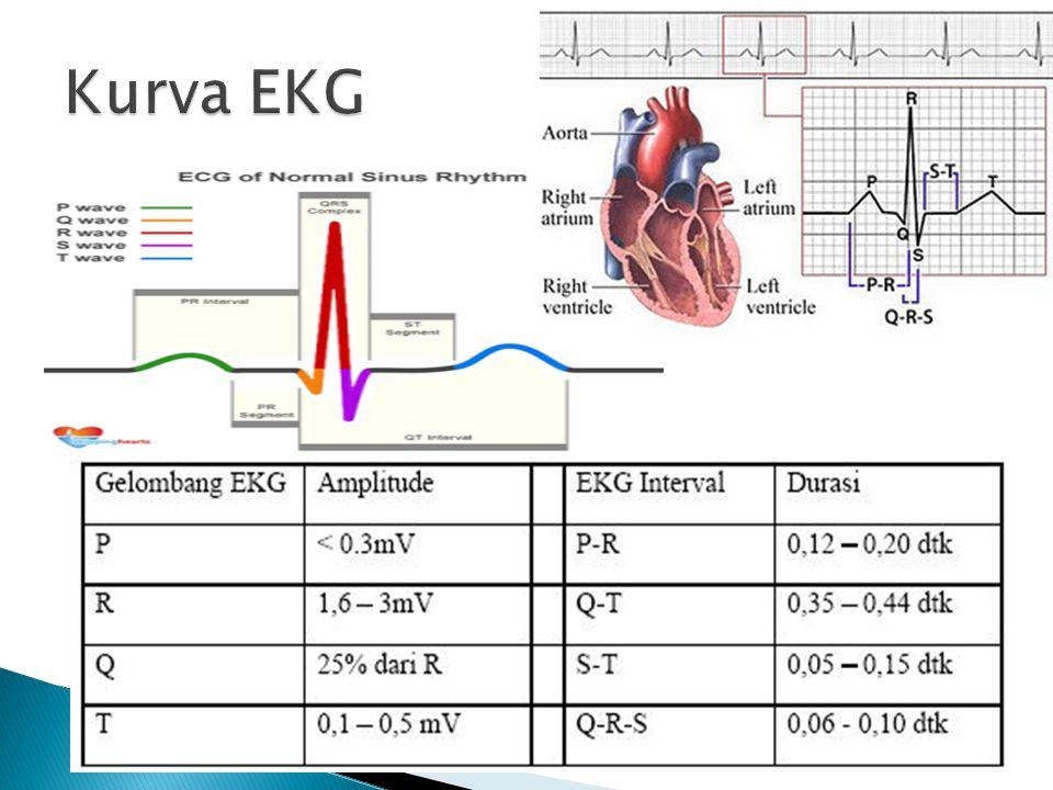 Kurva EKG