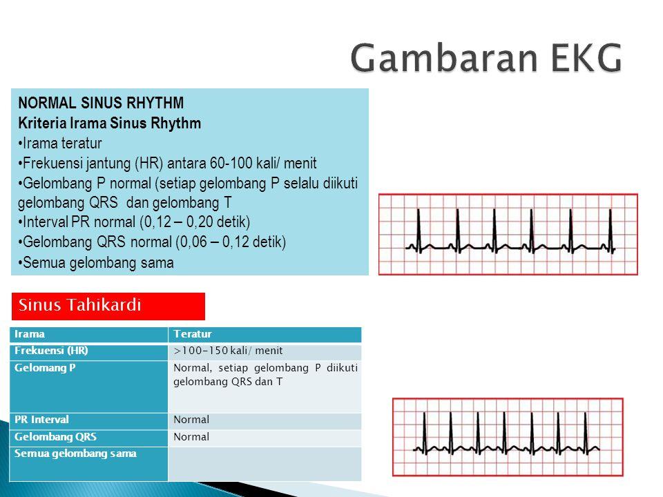 Gambaran EKG NORMAL SINUS RHYTHM Kriteria Irama Sinus Rhythm
