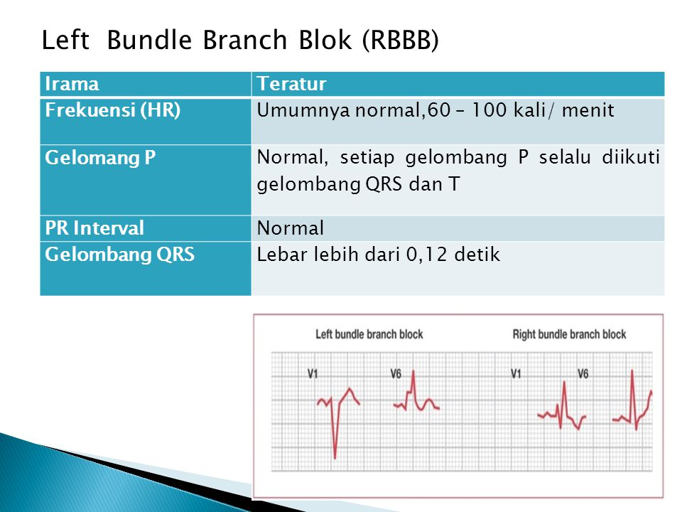 Left Bundle Branch Blok (RBBB)