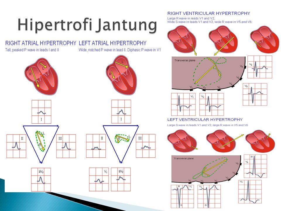 Hipertrofi Jantung