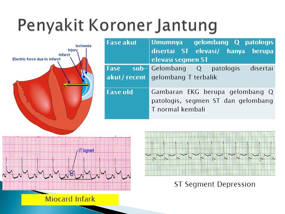 Penyakit Koroner Jantung