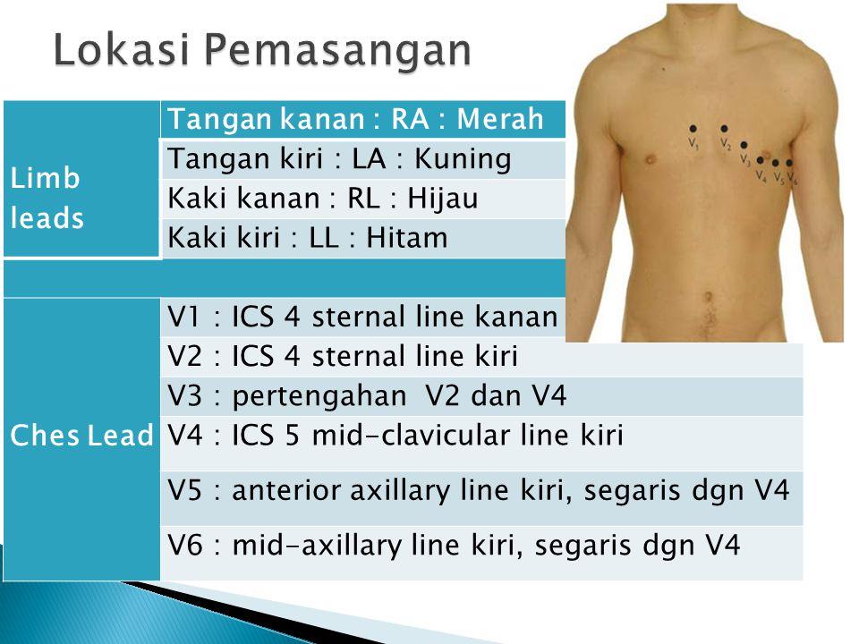 Lokasi Pemasangan Limb leads Tangan kanan : RA : Merah