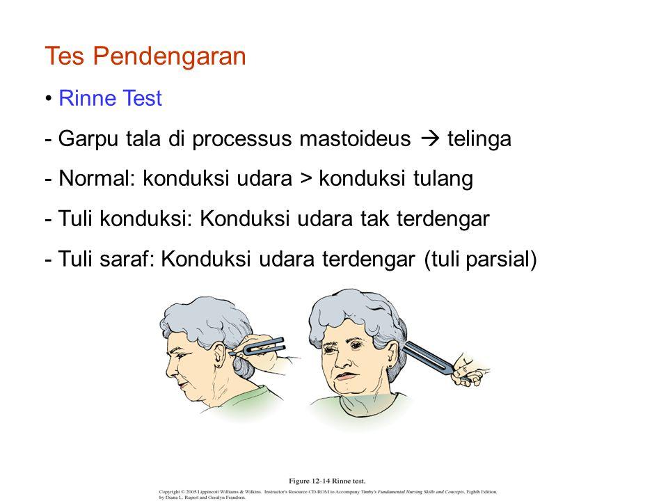 Tes Pendengaran Rinne Test