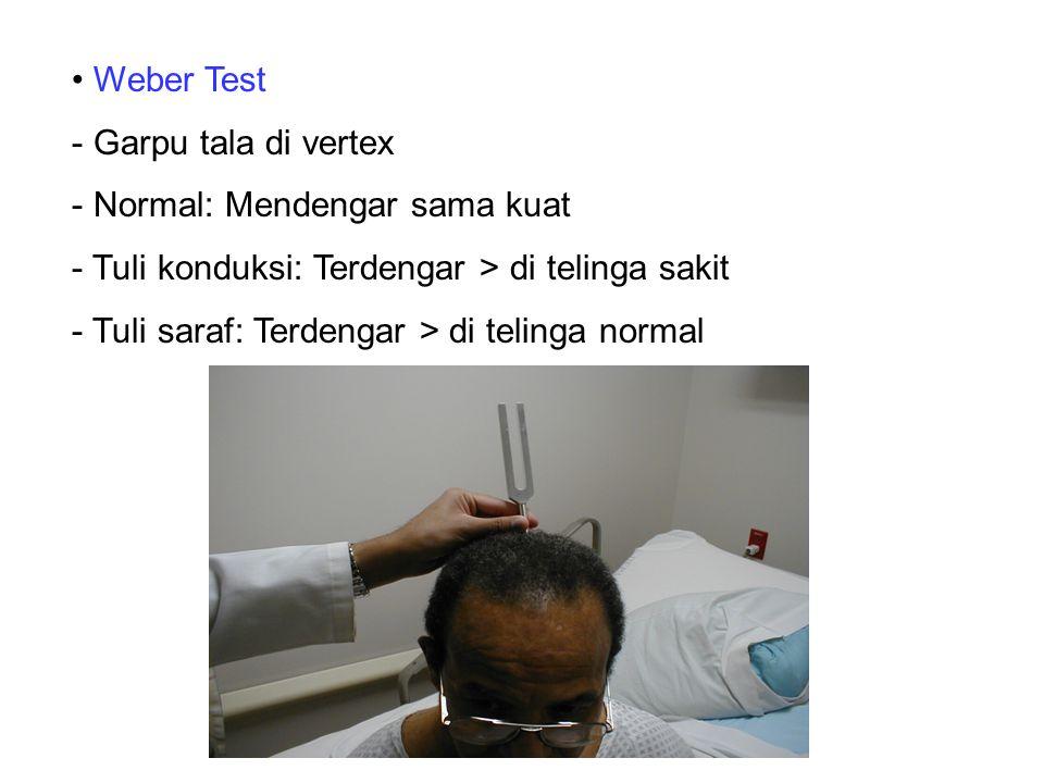 Weber Test Garpu tala di vertex. Normal: Mendengar sama kuat. Tuli konduksi: Terdengar > di telinga sakit.