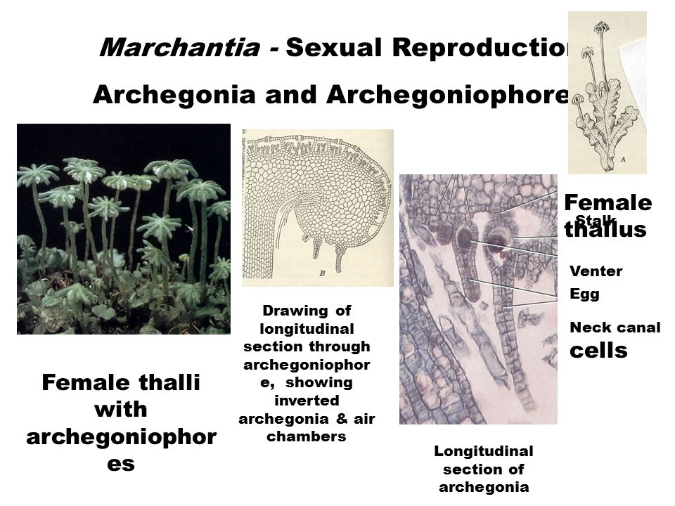 Marchantia - Sexual Reproduction Archegonia and Archegoniophores