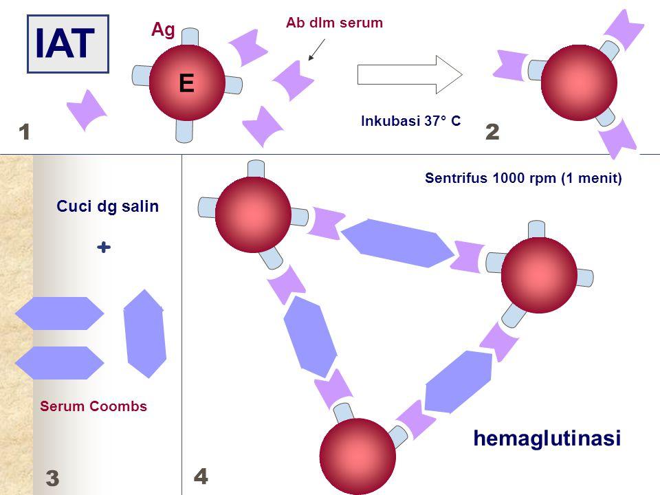 IAT + E E 1 2 hemaglutinasi 3 4 Ag Cuci dg salin Ab dlm serum